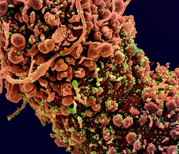 Colorized scanning electron micrograph of novel coronavirus SARS-CoV-2